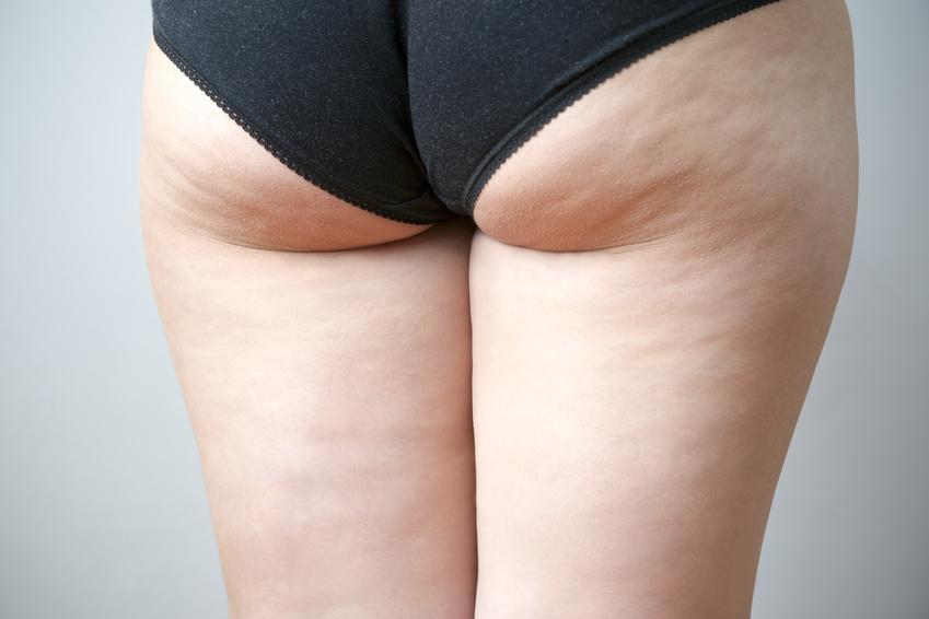 Zellulitis und Abnehmen